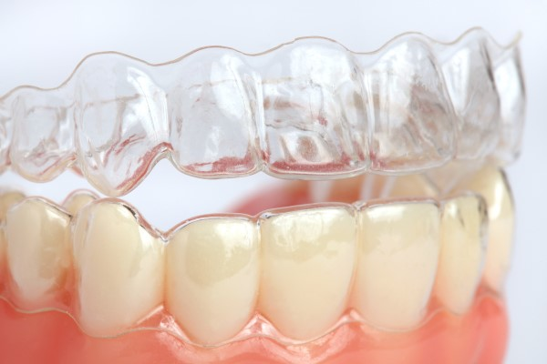 Clear Aligners To Correct Malocclusion
